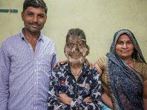 В Индии нашли ребенка с «синдромом оборотня»