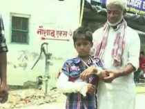 Незадачливые врачи из Индии наложили гипс мальчику на здоровую руку