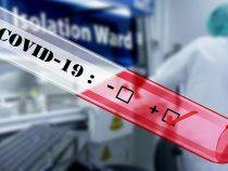 Минздрав закупил 5тысяч экспресс-тестов для быстрой диагностики коронавирусной инфекции