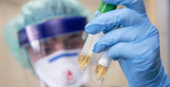 Для борьбы с коронавирусом КР необходимо 16,5 миллионов долларов