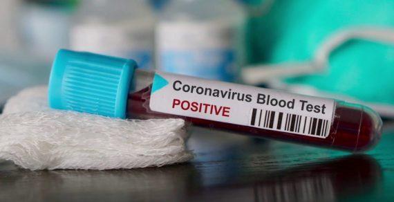 ВКыргызстане зарегистрировано 14новых случаев коронавируса