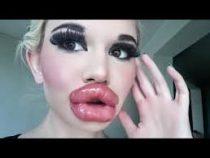 Опубликовано фото девушки с самыми большими губами в мире