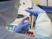 ВКыргызстане откоронавируса выздоровели еще 17 человек