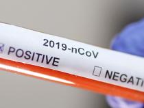 В Бишкеке за прошедшие сутки не зарегистрировано случаев заражения коронавирусом