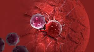 Врач назвал простой способ предотвратить рак
