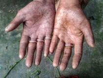 Родственники мучаются из-за того, что у них нет отпечатков пальцев