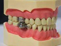 Ученые придумали магнитный зубной замок для желающих похудеть