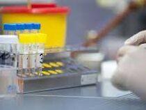 Начато досудебное производство по фактам продажи поддельных результатов ПЦР-тестов